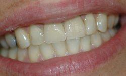 dental-bridges1