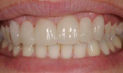 dental-bridges5
