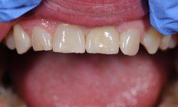 dental-work-1