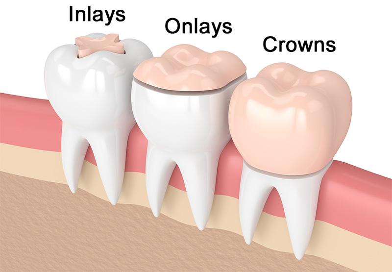 Inlays & Onlays in Dryden
