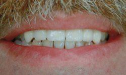kinzi-dental-crown14