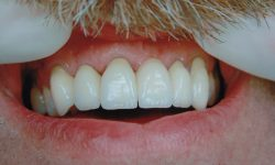 Dental Bridges in Dryden