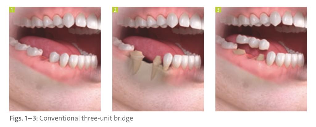 Process of Dental Bridge