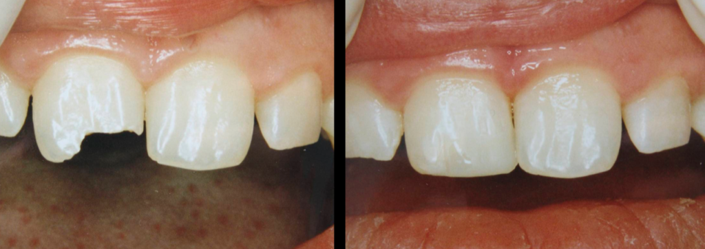 Dental Composite Fillings in Dryden