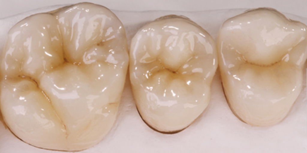 Dental Crowns in Dryden