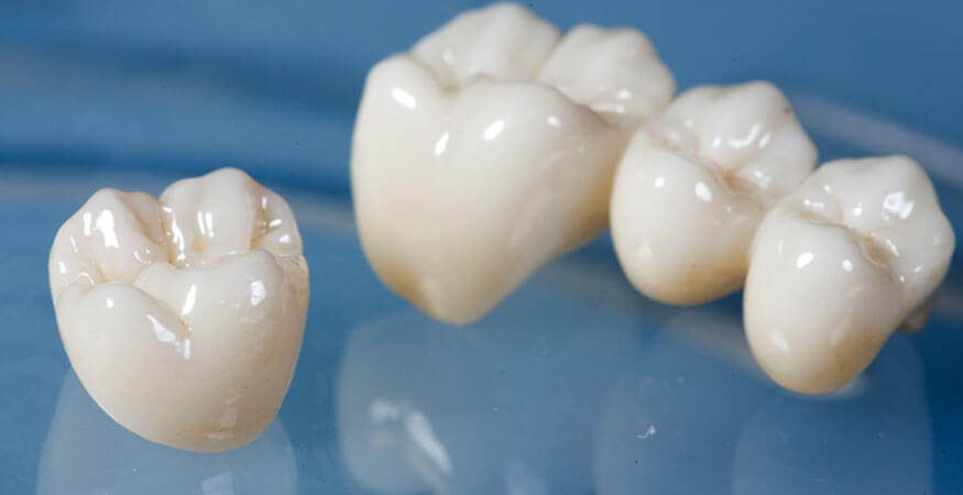 all-you-need-to-know-about-dental-crowns